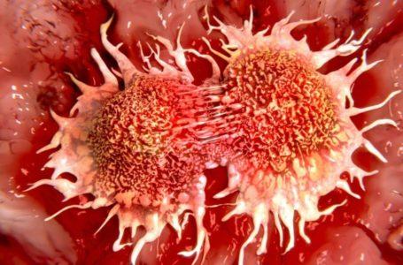 علت بروز سرطان چیست و چطور میتوان پیشگیری کرد ؟